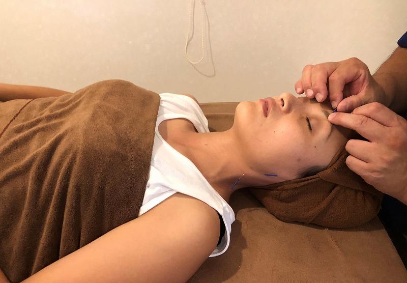 美容鍼(優子さんの美容矯正)